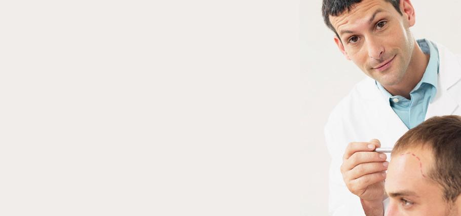 Transplante de Cabello: La Mejor Solución para la Calvicie