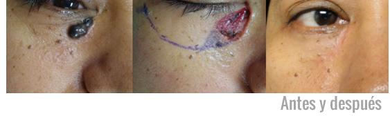 Caso resuelto de cáncer de piel en Monterrey