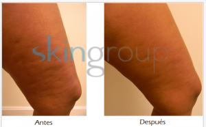 Celulitis - resultados 2