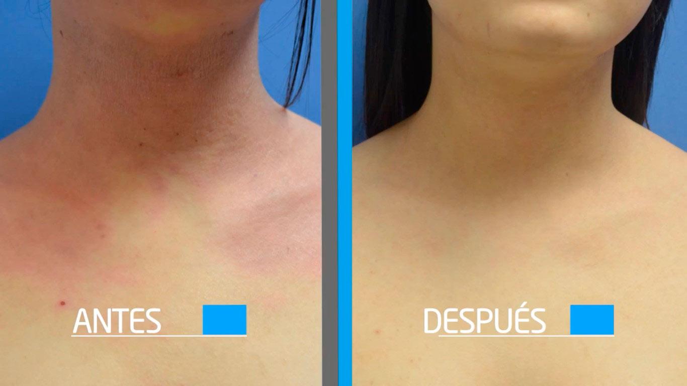 dermatitis atopica - resultados