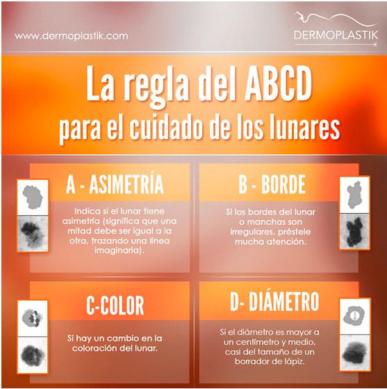 La regla del ABCD