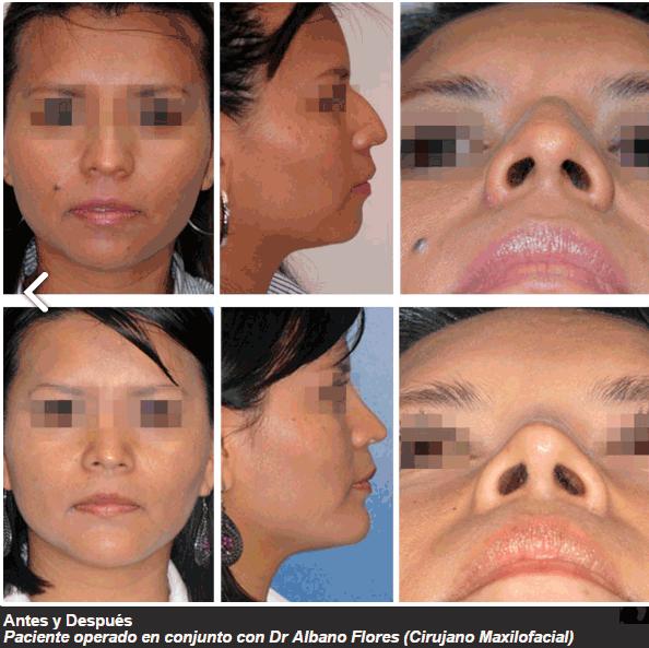 rinoplastia en Monterrey - resultados
