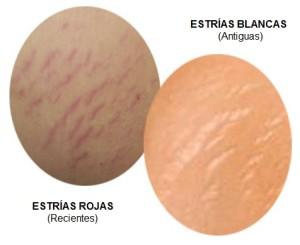 estrias-rojas-y-blancas