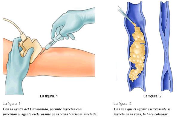 Tratamiento escleroterapia