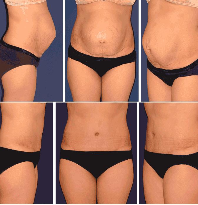 Lipectomia abdominal en Monterrey - Resultados 2