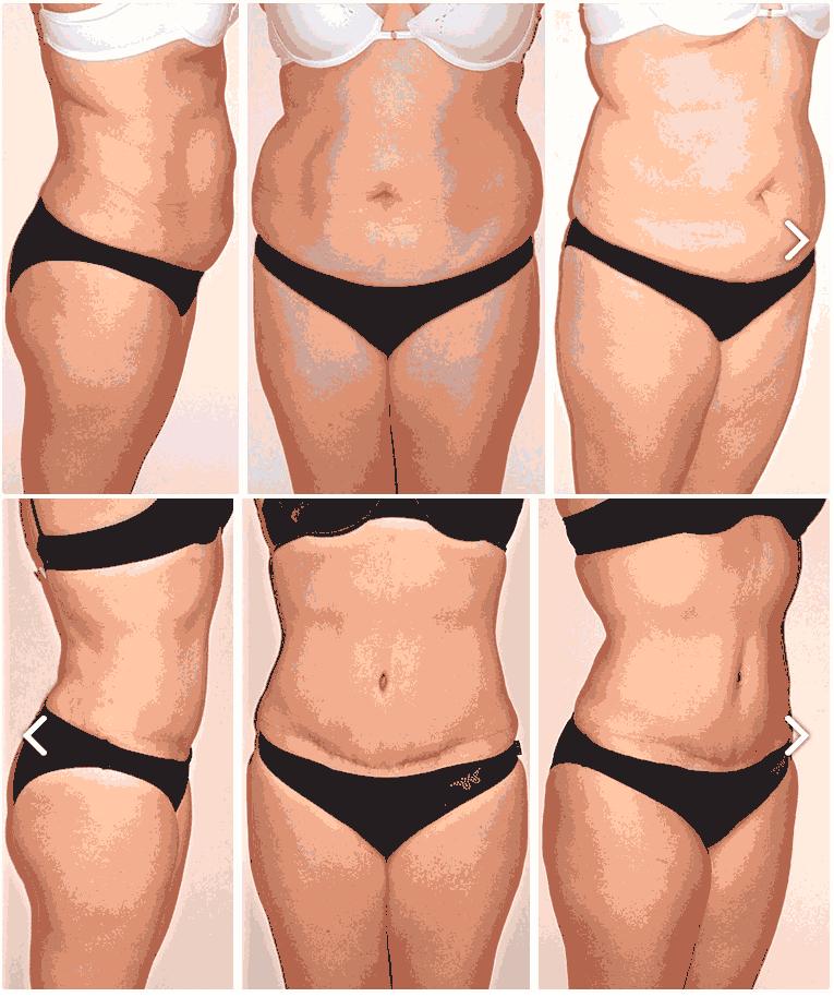 Lipectomia abdominal en Monterrey - Resultados