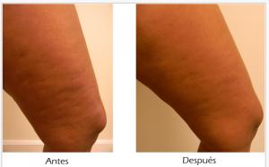 resultados-tratamiento-para-reduccion-de-celulitis-en-monterrey