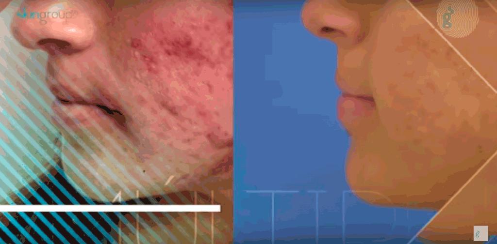 acne en monterrey