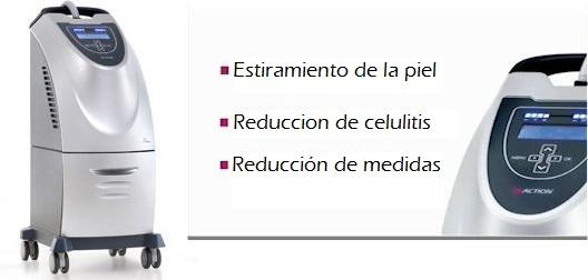 Celulitis en Monterrey
