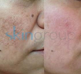 Rejuvenecimiento facial - peeling resultados