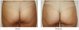 resultados tratamiento para reduccion de celulitis en monterrey