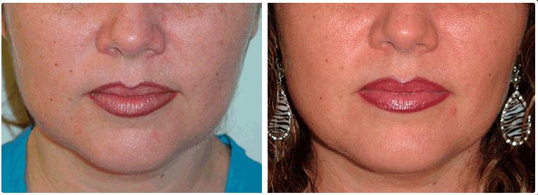 Bichectomía en Monterrey - REVISA NUESTRAS FOTOS - Skingroup
