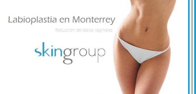 Labioplastia en Monterrey