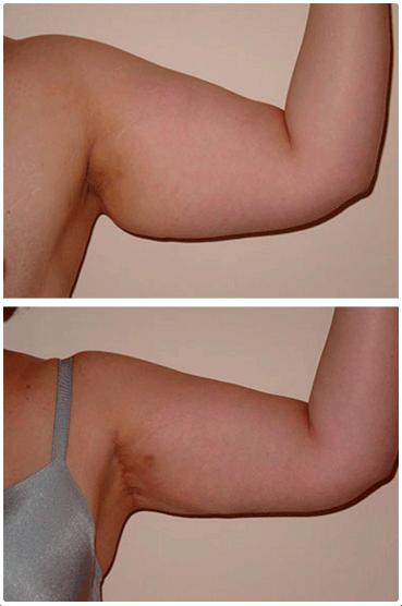 Resultados de braquioplastia en Monterrey - Cirugía de brazos