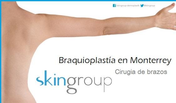 braquioplastia en monterrey - cirugia de brazos