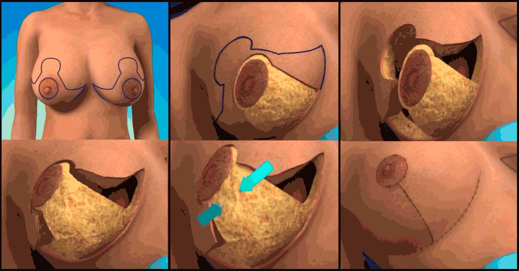procedimiento-de-reduccion-de-busto