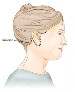 cervical facial rhytidectomy