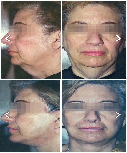 Resultados Lifting facial en Monterrey