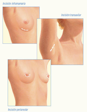 Incisiones mamoplastia