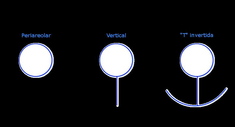 Tecnicas de incisión de mamoplastia de reducción