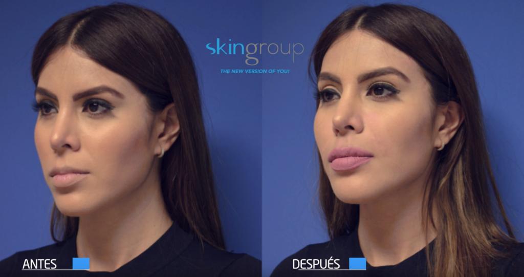 Aumento de labios Monterrey - Resultados