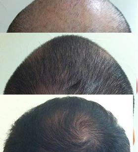Caída de cabello en Monterrey - Resultados