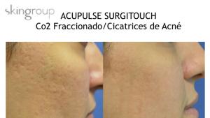 Cicatrices de acne