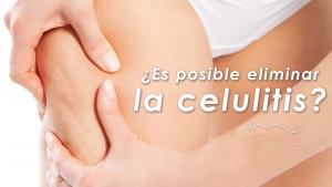 Tratamiento-para-reducir-celulitis-en-Monterrey
