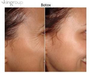 Botox en Reynosa - Resultados