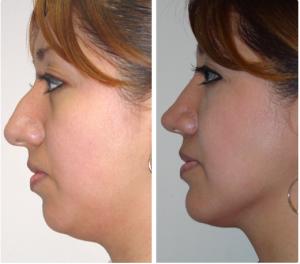 Cirujano Plastico Reynosa - Resultados mentoplastia