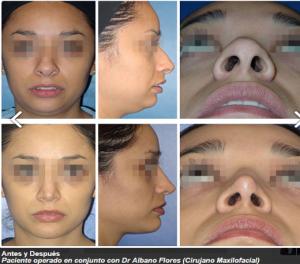 Cirujano Plastico Reynosa - Resultados rinoplastia