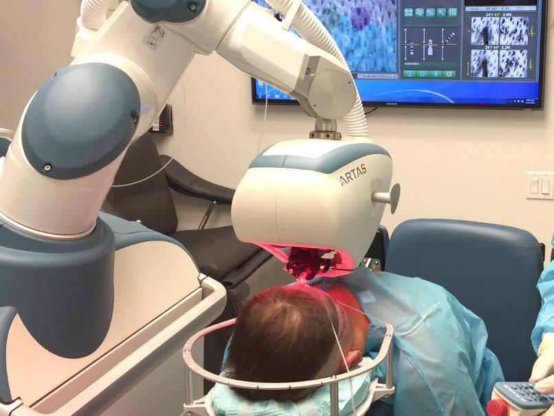 Injerto capilar con robot
