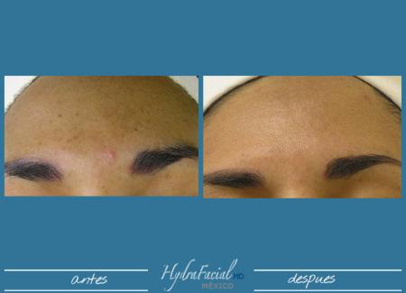 Resultados de limpieza facial profunda