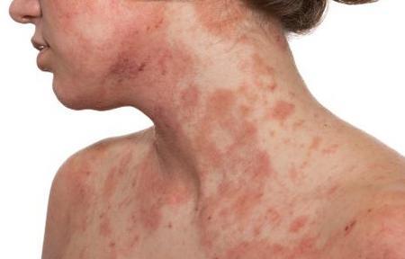 Tratamiento para la dermatitis