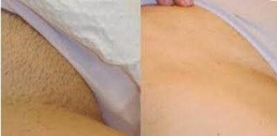 depilacion genital en monterrey