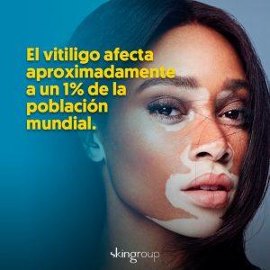 fototerapia en monterrey para vitiligo