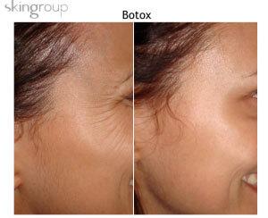 Botox en Reynosa